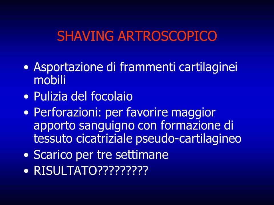 SHAVING ARTROSCOPICO Asportazione di frammenti cartilaginei mobili