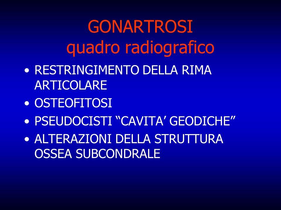 GONARTROSI quadro radiografico
