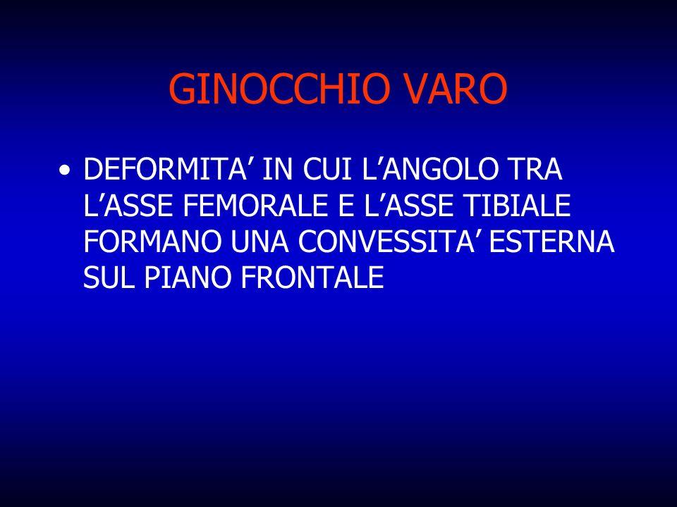 GINOCCHIO VARO DEFORMITA' IN CUI L'ANGOLO TRA L'ASSE FEMORALE E L'ASSE TIBIALE FORMANO UNA CONVESSITA' ESTERNA SUL PIANO FRONTALE.
