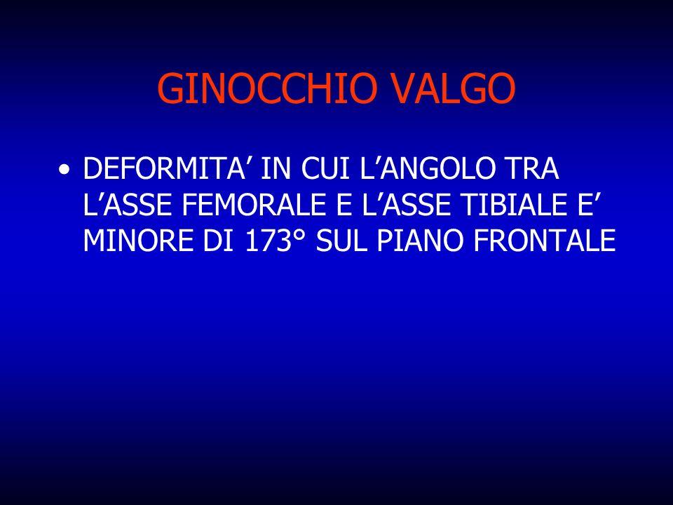 GINOCCHIO VALGO DEFORMITA' IN CUI L'ANGOLO TRA L'ASSE FEMORALE E L'ASSE TIBIALE E' MINORE DI 173° SUL PIANO FRONTALE.