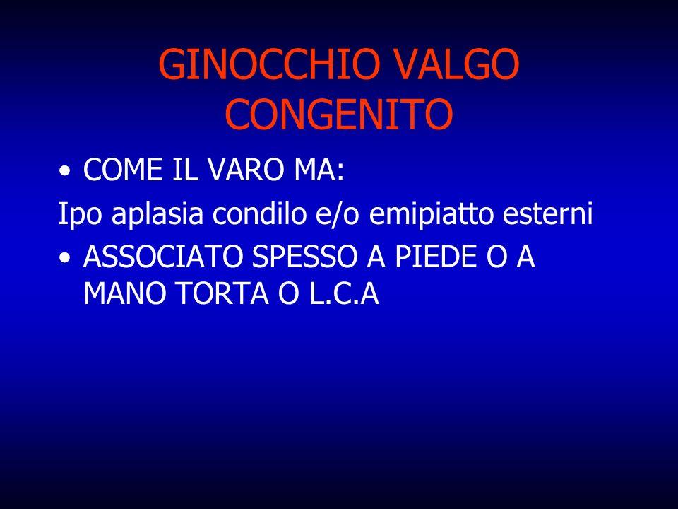 GINOCCHIO VALGO CONGENITO