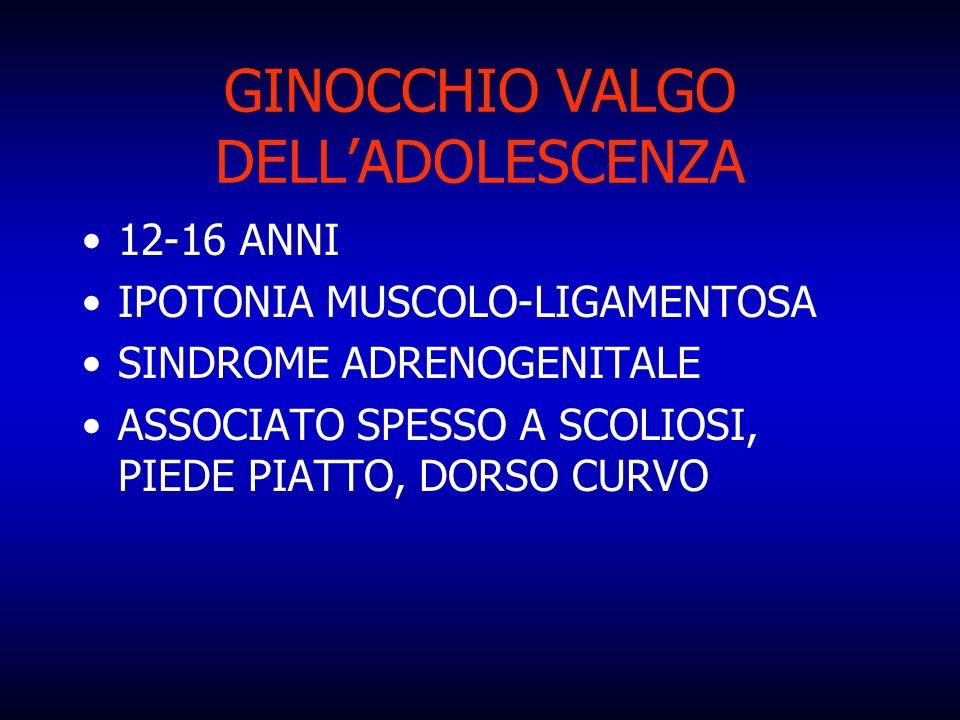 GINOCCHIO VALGO DELL'ADOLESCENZA