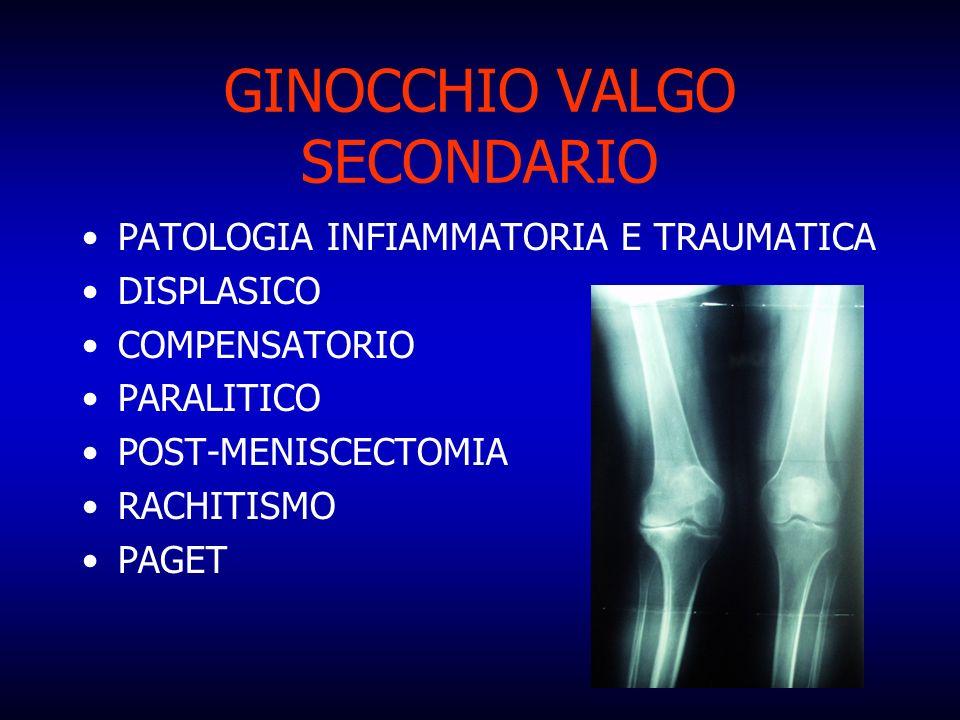 GINOCCHIO VALGO SECONDARIO