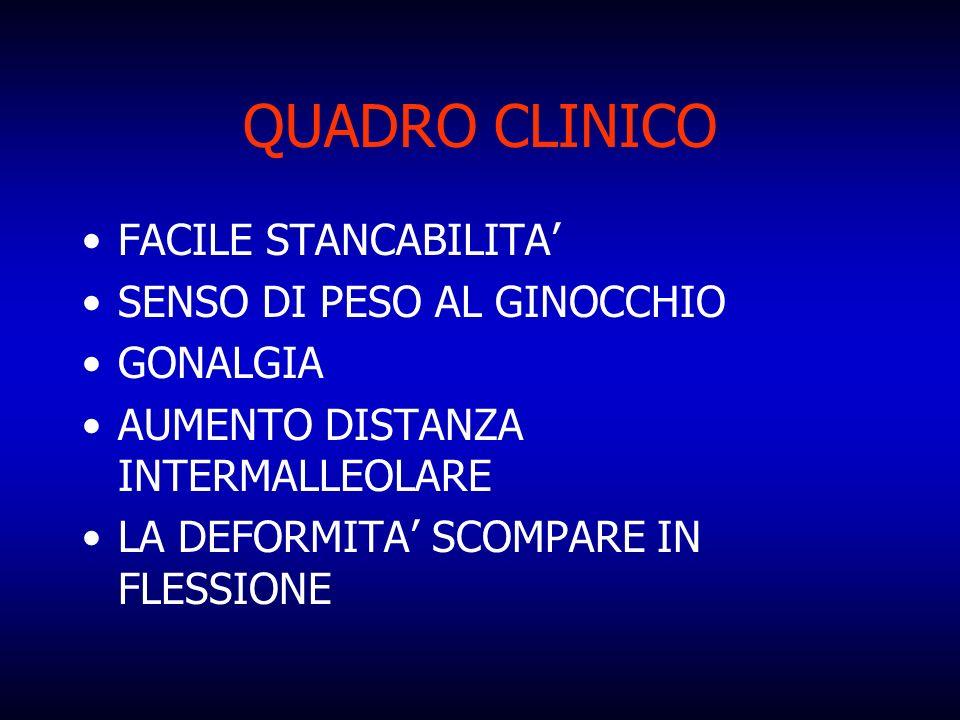 QUADRO CLINICO FACILE STANCABILITA' SENSO DI PESO AL GINOCCHIO