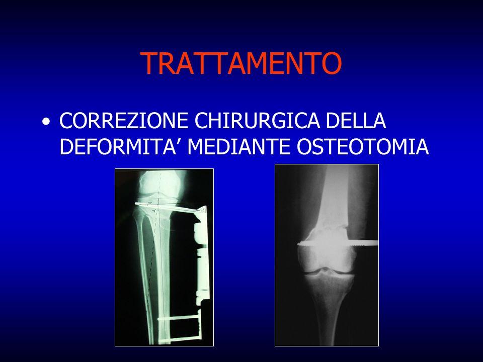 TRATTAMENTO CORREZIONE CHIRURGICA DELLA DEFORMITA' MEDIANTE OSTEOTOMIA