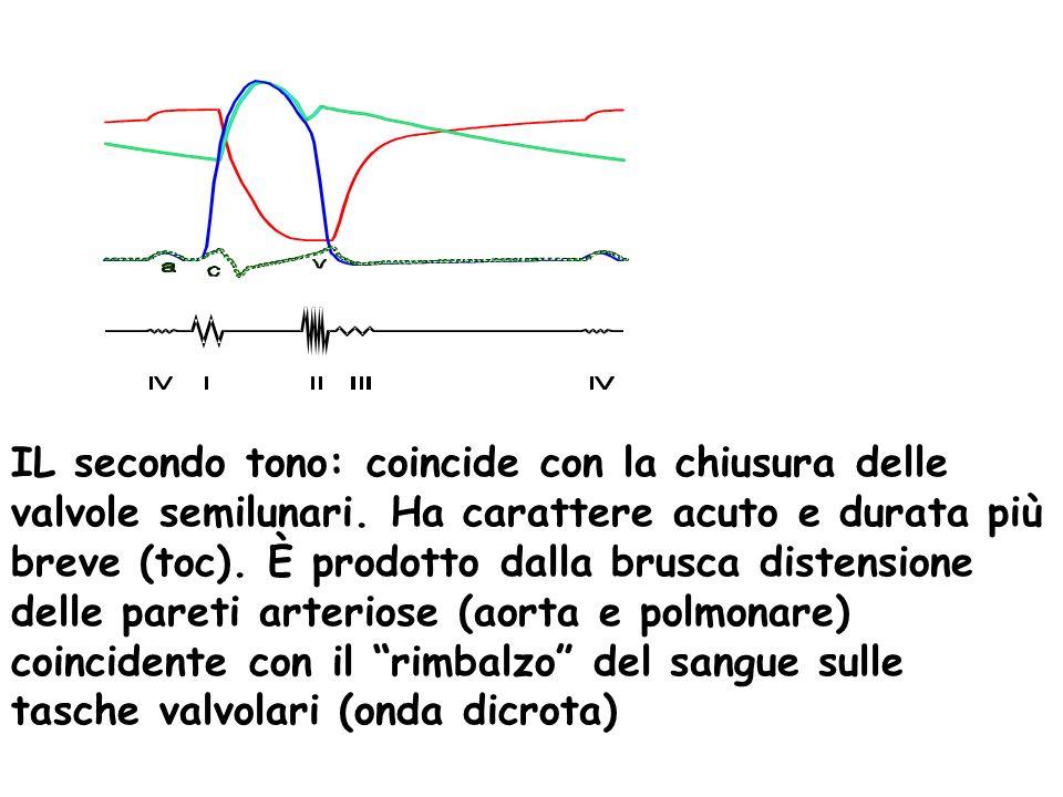 IL secondo tono: coincide con la chiusura delle valvole semilunari