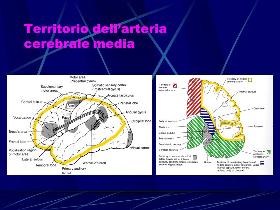 Territorio dell'arteria cerebrale media