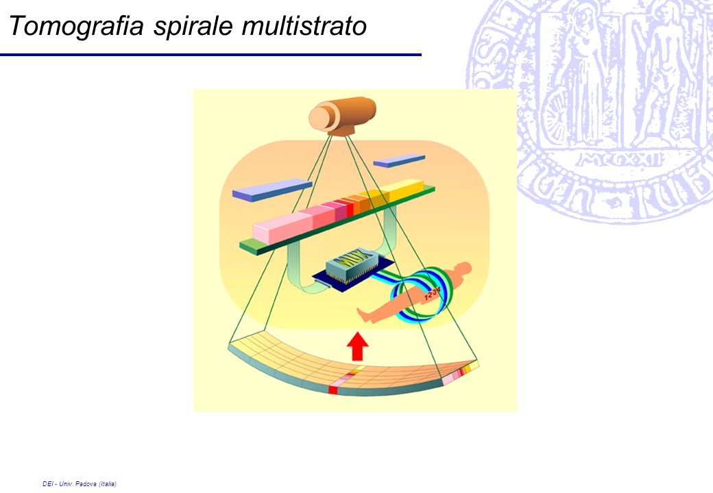 Tomografia spirale multistrato