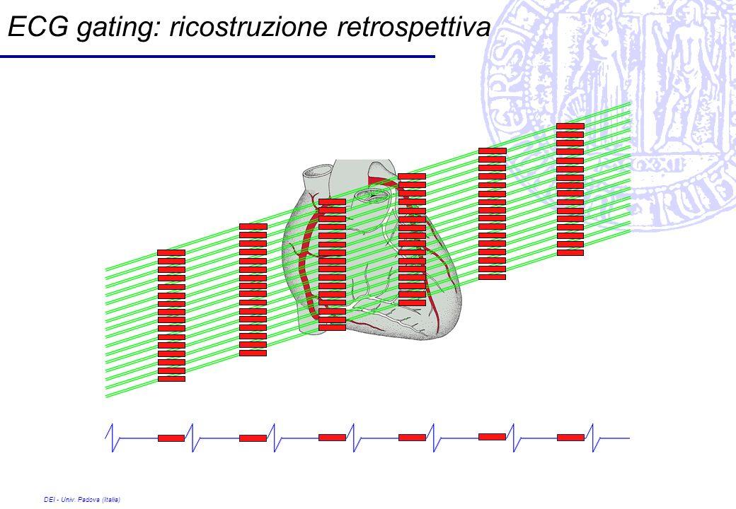 ECG gating: ricostruzione retrospettiva