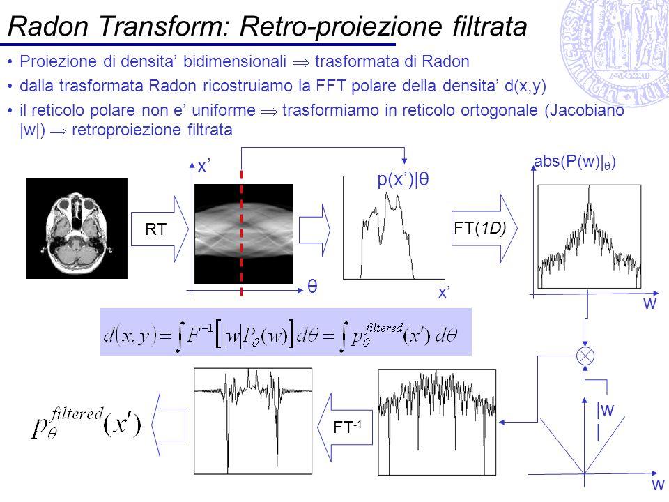 Radon Transform: Retro-proiezione filtrata