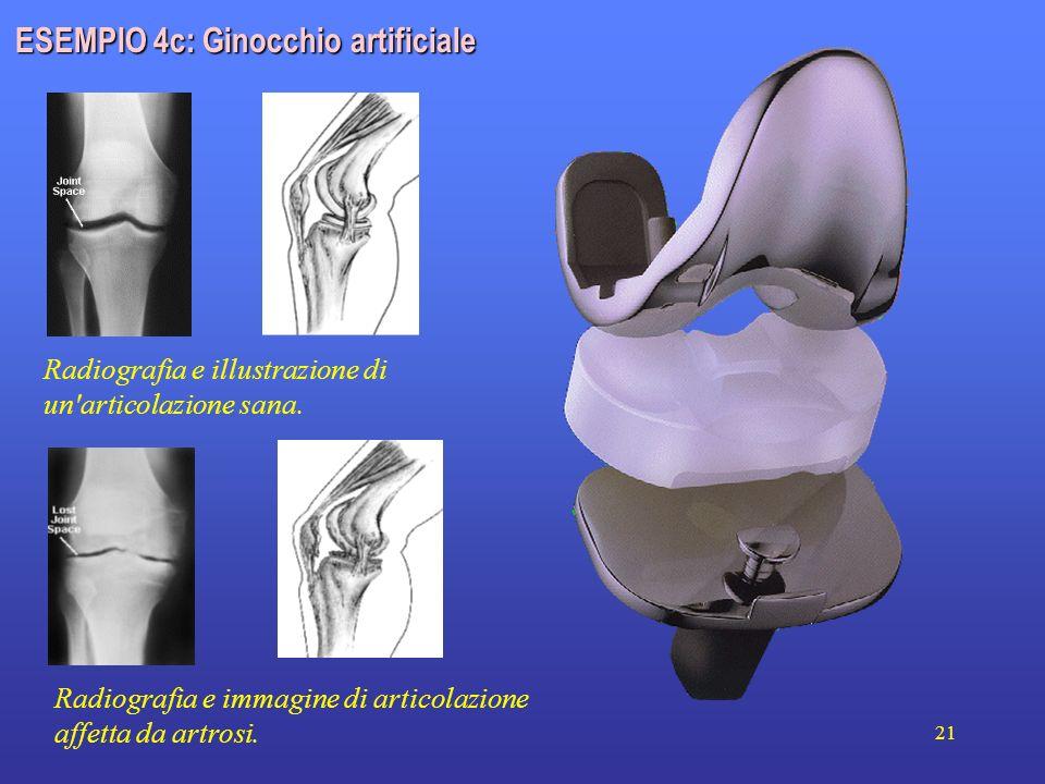 ESEMPIO 4c: Ginocchio artificiale