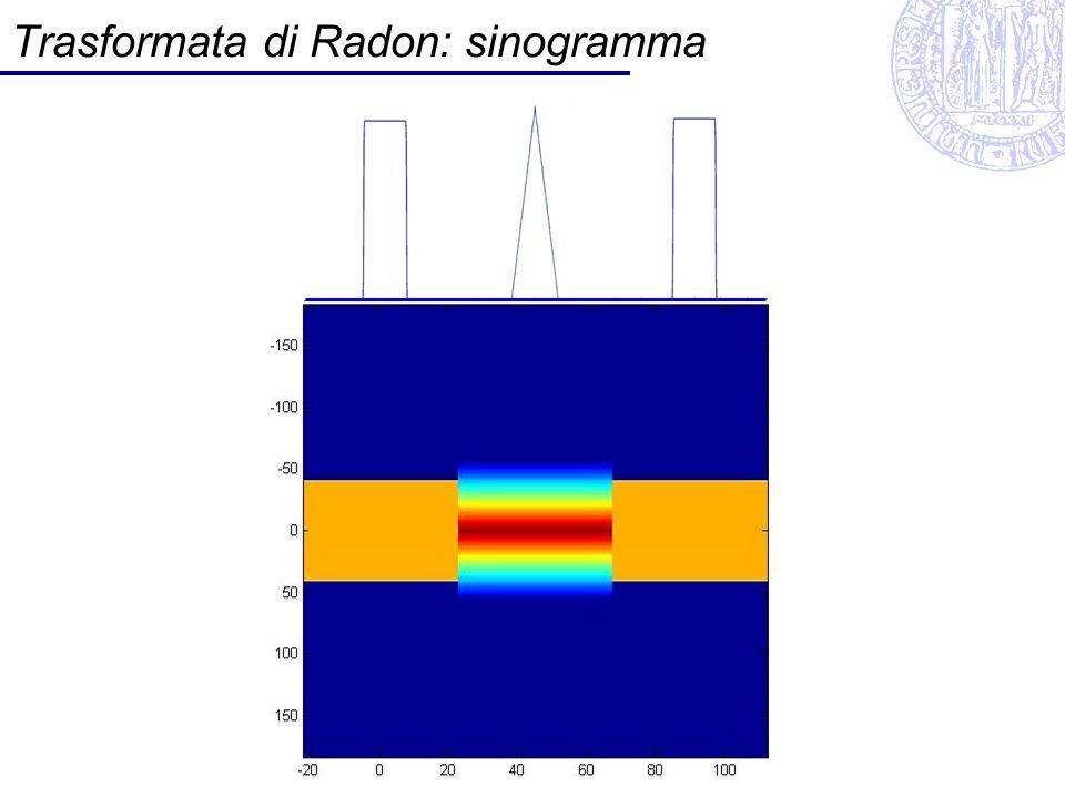 Trasformata di Radon: sinogramma