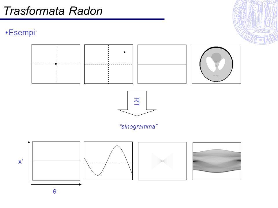 Trasformata Radon Esempi: RT sinogramma x' θ