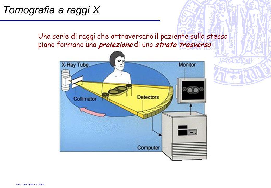 Tomografia a raggi X Una serie di raggi che attraversano il paziente sullo stesso piano formano una proiezione di uno strato trasverso.