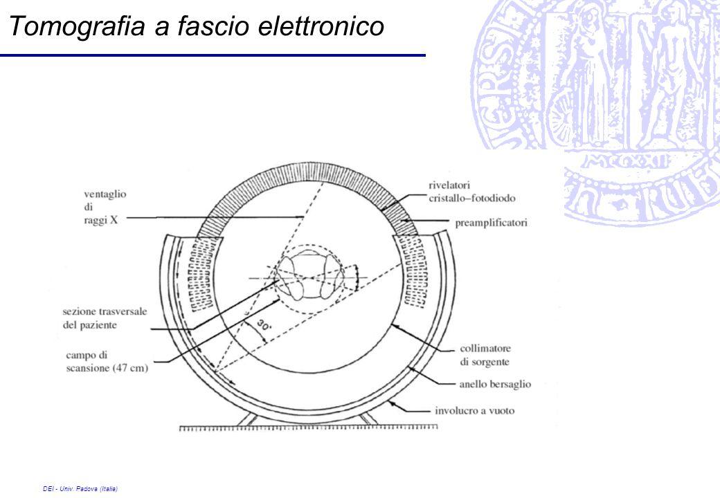 Tomografia a fascio elettronico