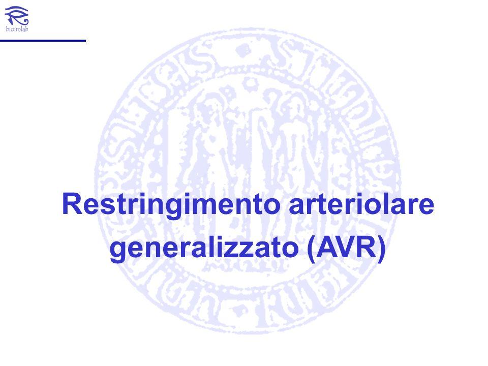 Restringimento arteriolare generalizzato (AVR)