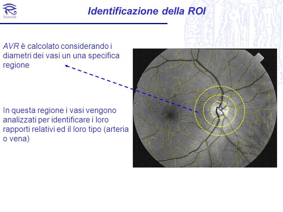 Identificazione della ROI