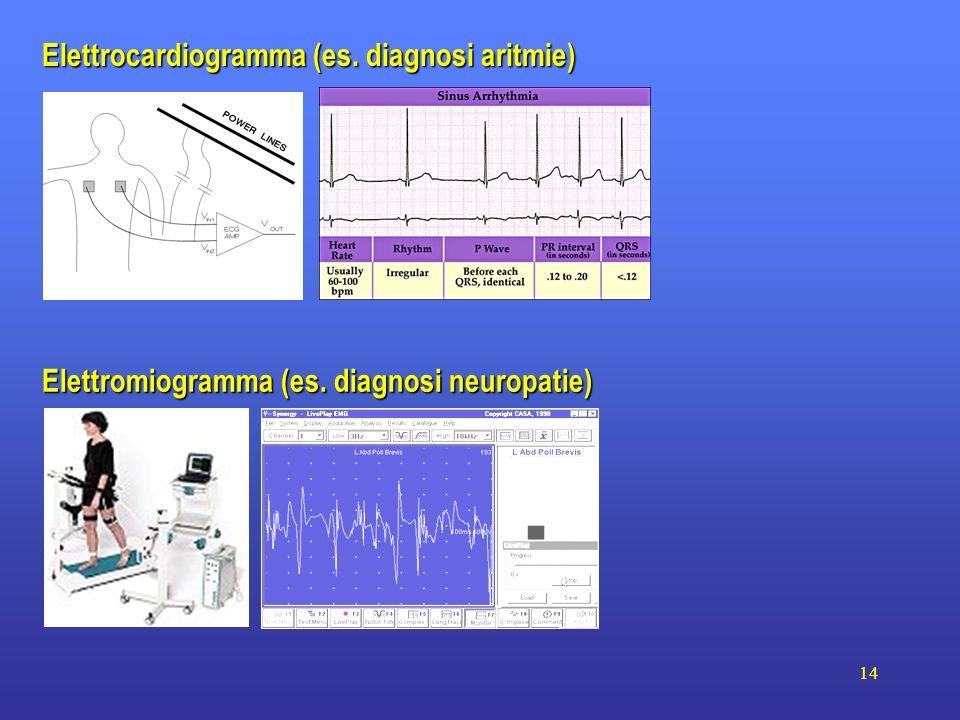 Elettrocardiogramma (es. diagnosi aritmie)