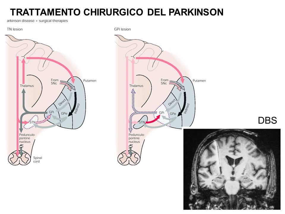 TRATTAMENTO CHIRURGICO DEL PARKINSON