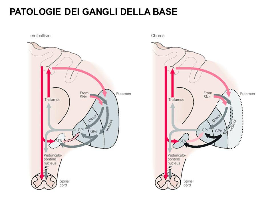 Body_ID: F023018 PATOLOGIE DEI GANGLI DELLA BASE