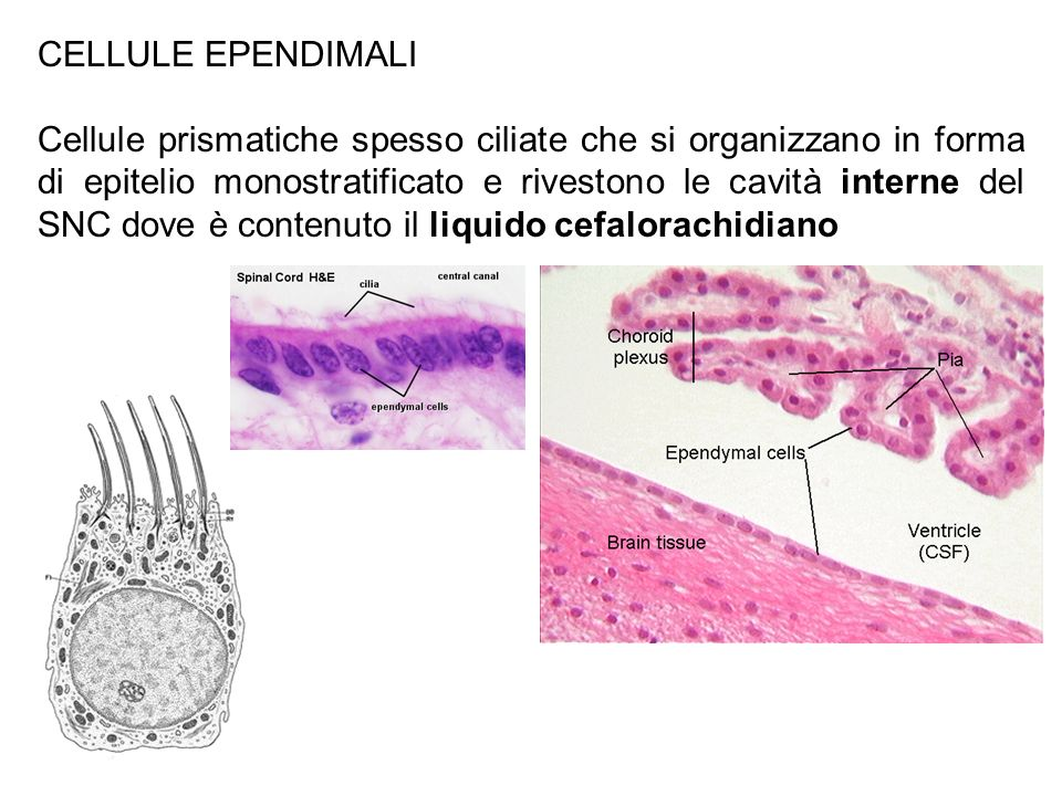 CELLULE EPENDIMALI