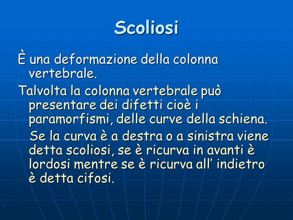 Scoliosi È una deformazione della colonna vertebrale.