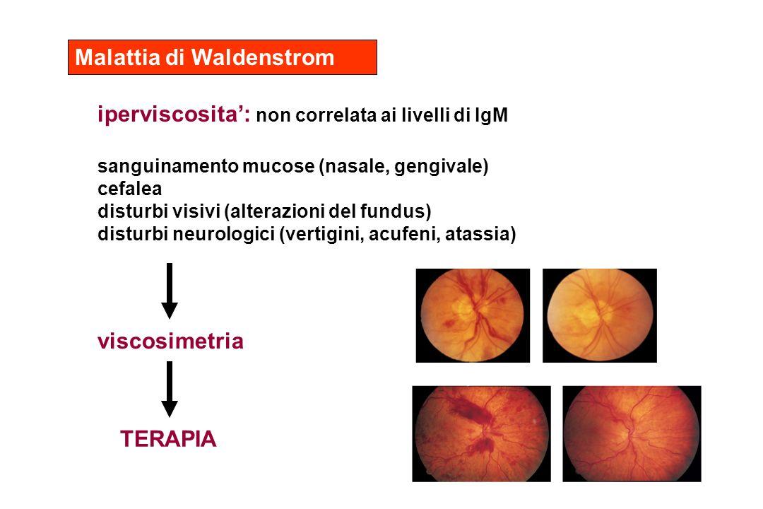 Malattia di Waldenstrom