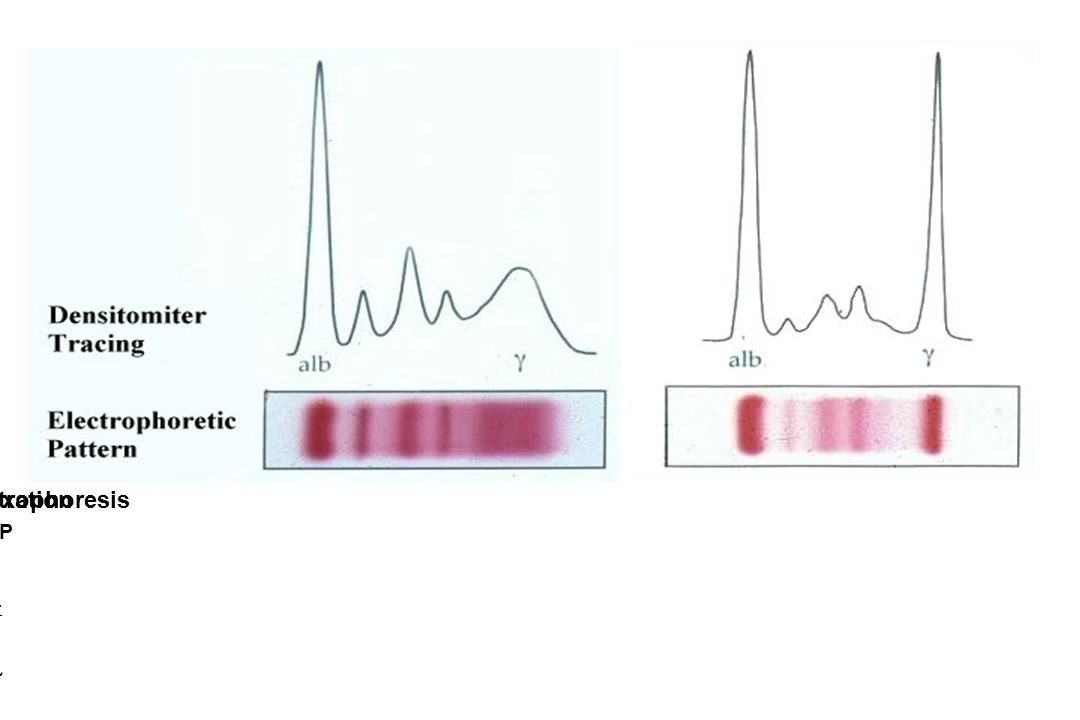 Immunoeletrophoresis