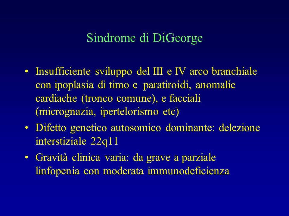 Sindrome di DiGeorge