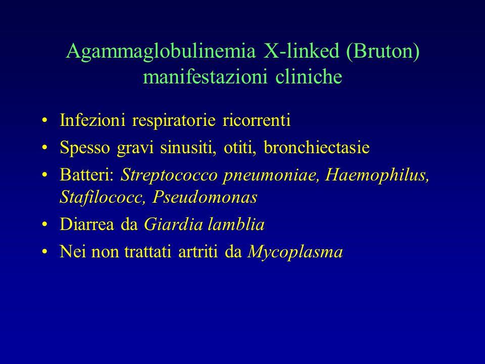 Agammaglobulinemia X-linked (Bruton) manifestazioni cliniche