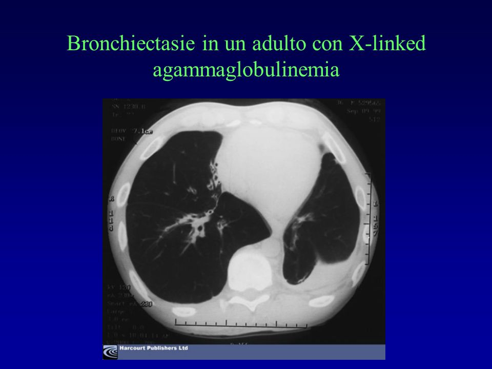 Bronchiectasie in un adulto con X-linked agammaglobulinemia