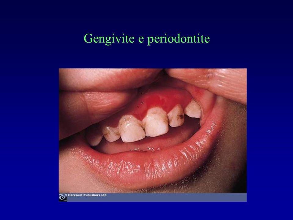 Gengivite e periodontite