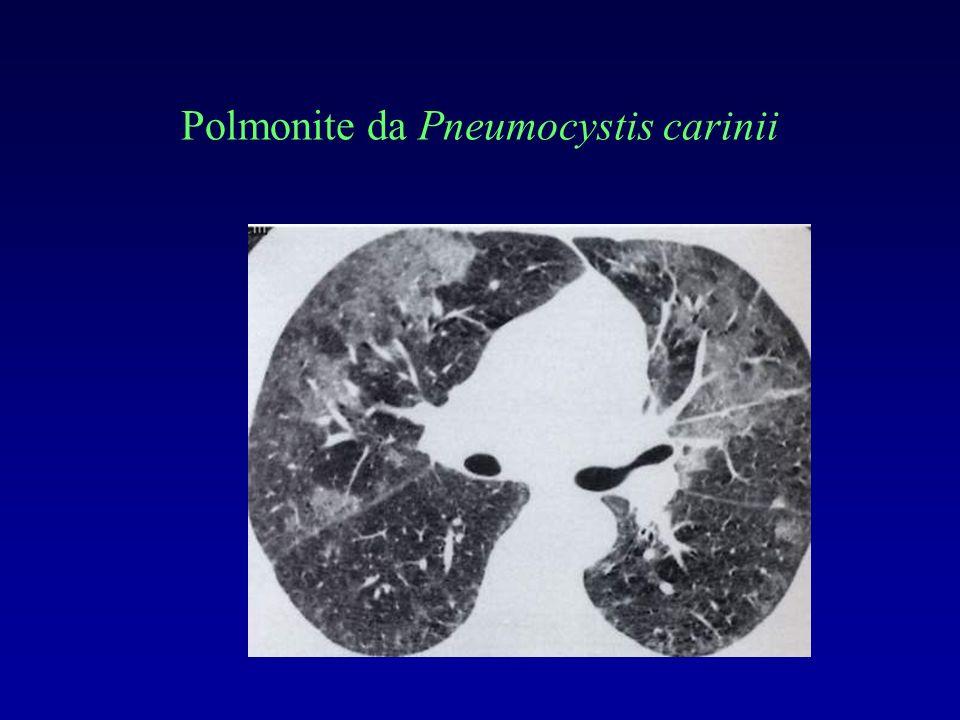Polmonite da Pneumocystis carinii