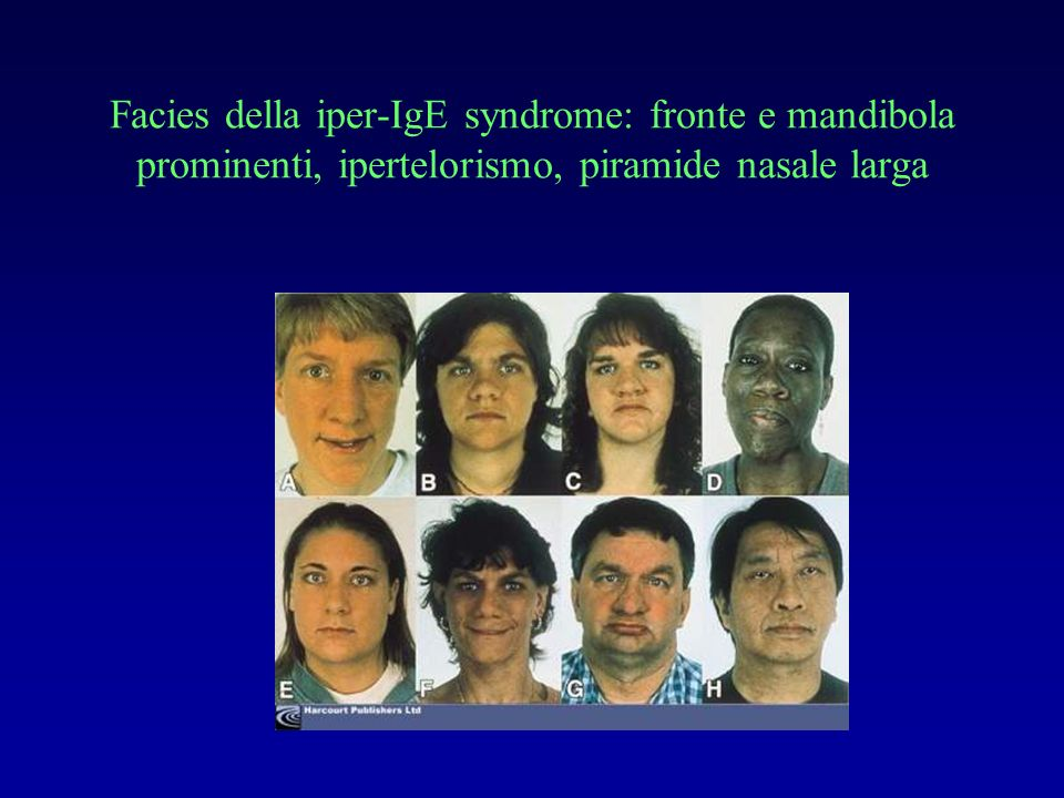Facies della iper-IgE syndrome: fronte e mandibola prominenti, ipertelorismo, piramide nasale larga