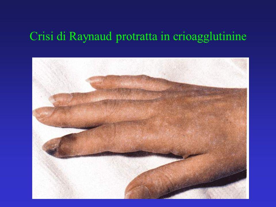 Crisi di Raynaud protratta in crioagglutinine