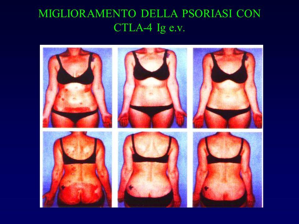 MIGLIORAMENTO DELLA PSORIASI CON CTLA-4 Ig e.v.