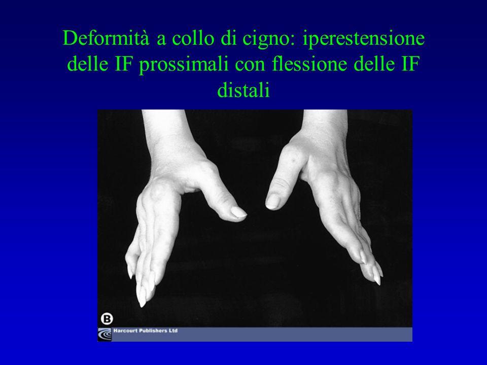 Deformità a collo di cigno: iperestensione delle IF prossimali con flessione delle IF distali