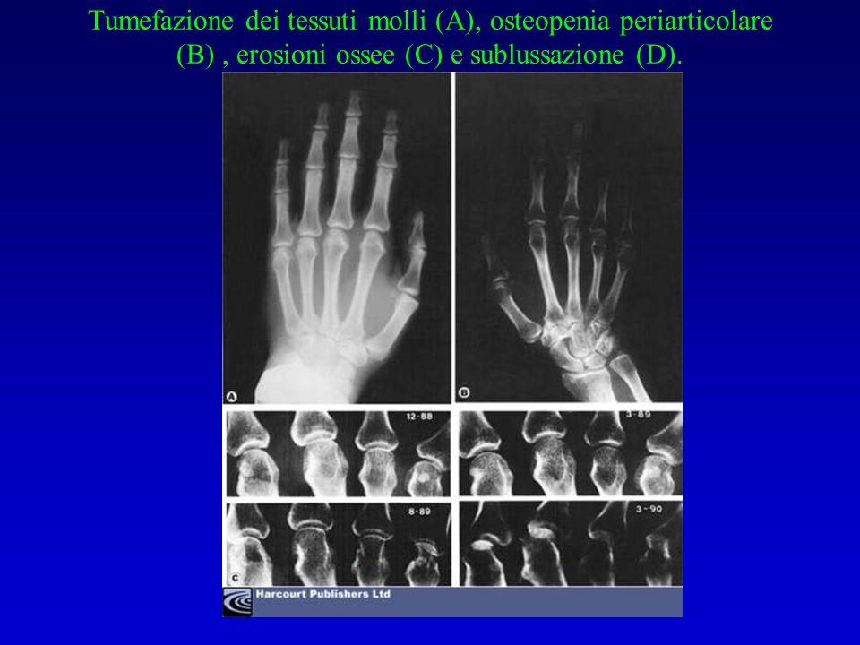 Tumefazione dei tessuti molli (A), osteopenia periarticolare (B) , erosioni ossee (C) e sublussazione (D).