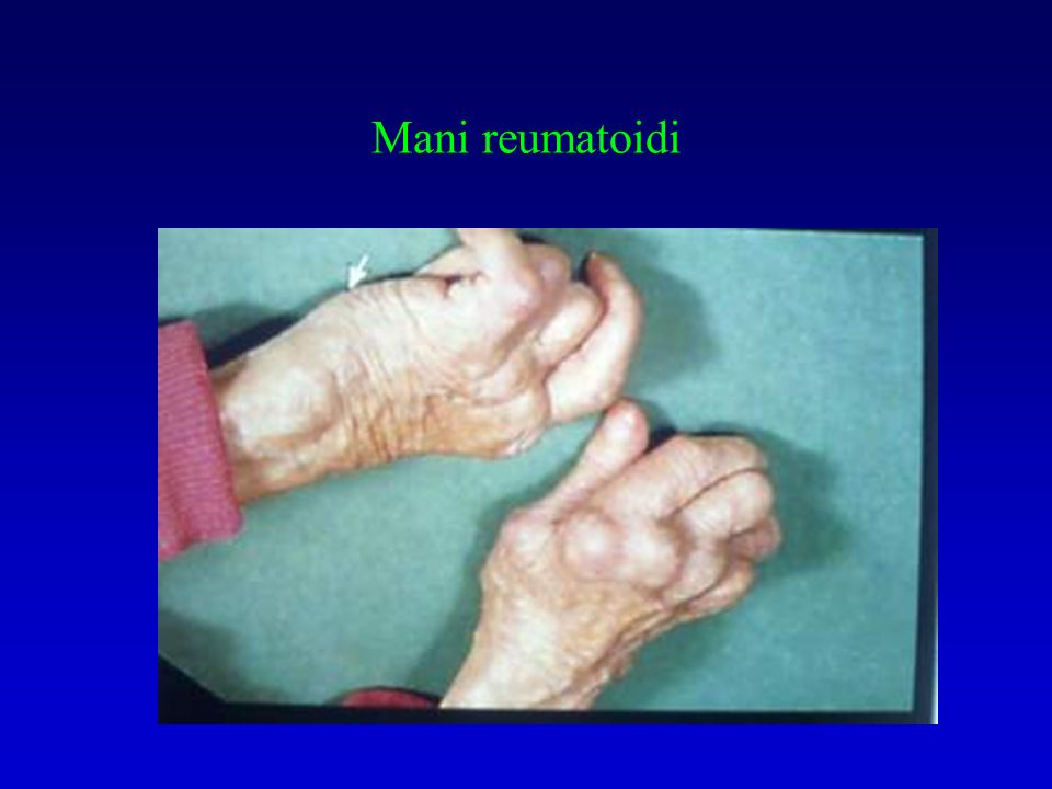 Mani reumatoidi