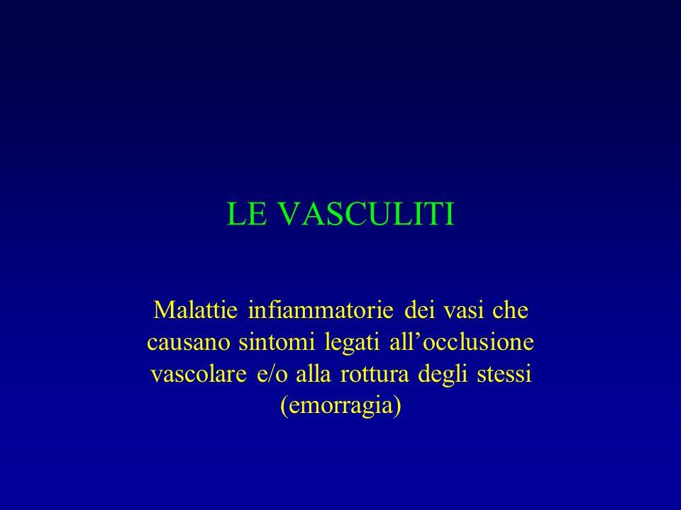 LE VASCULITI Malattie infiammatorie dei vasi che causano sintomi legati all'occlusione vascolare e/o alla rottura degli stessi (emorragia)