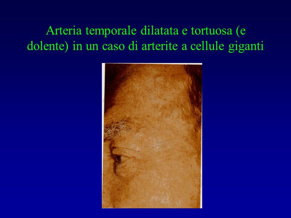 Arteria temporale dilatata e tortuosa (e dolente) in un caso di arterite a cellule giganti