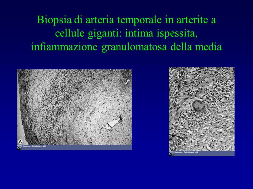 Biopsia di arteria temporale in arterite a cellule giganti: intima ispessita, infiammazione granulomatosa della media