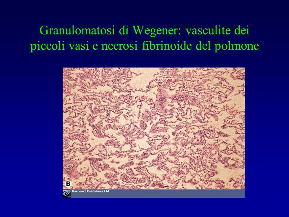 Granulomatosi di Wegener: vasculite dei piccoli vasi e necrosi fibrinoide del polmone