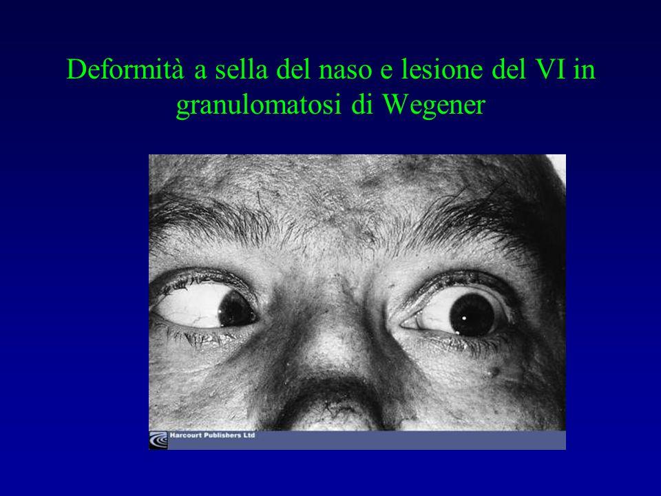 Deformità a sella del naso e lesione del VI in granulomatosi di Wegener