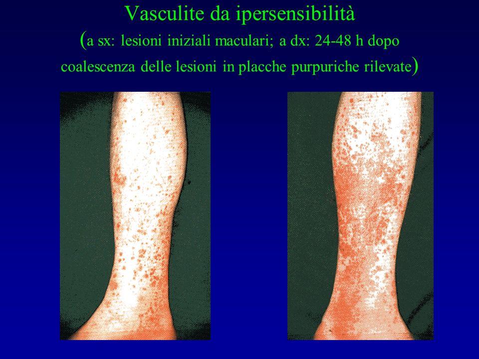 Vasculite da ipersensibilità (a sx: lesioni iniziali maculari; a dx: 24-48 h dopo coalescenza delle lesioni in placche purpuriche rilevate)