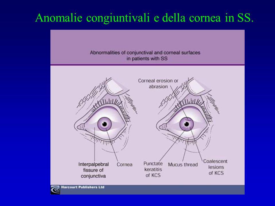 Anomalie congiuntivali e della cornea in SS.