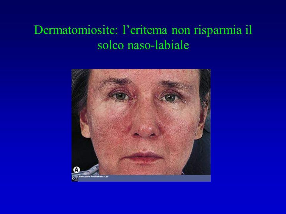 Dermatomiosite: l'eritema non risparmia il solco naso-labiale