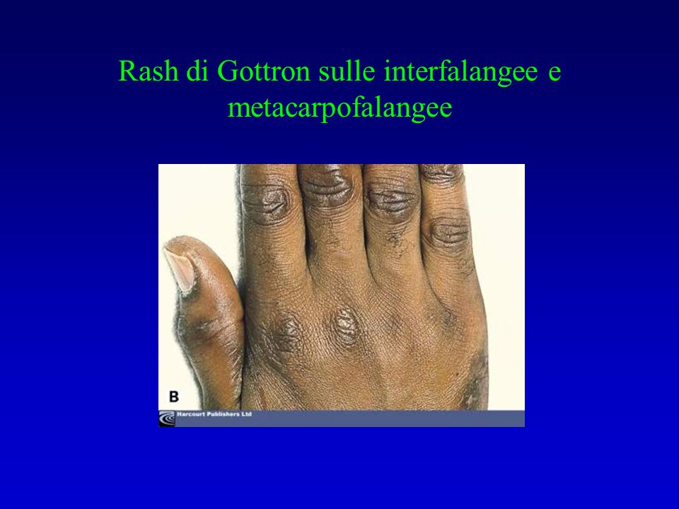 Rash di Gottron sulle interfalangee e metacarpofalangee
