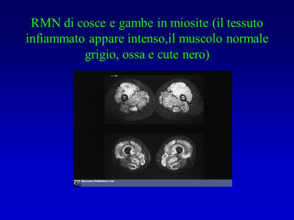 RMN di cosce e gambe in miosite (il tessuto infiammato appare intenso,il muscolo normale grigio, ossa e cute nero)
