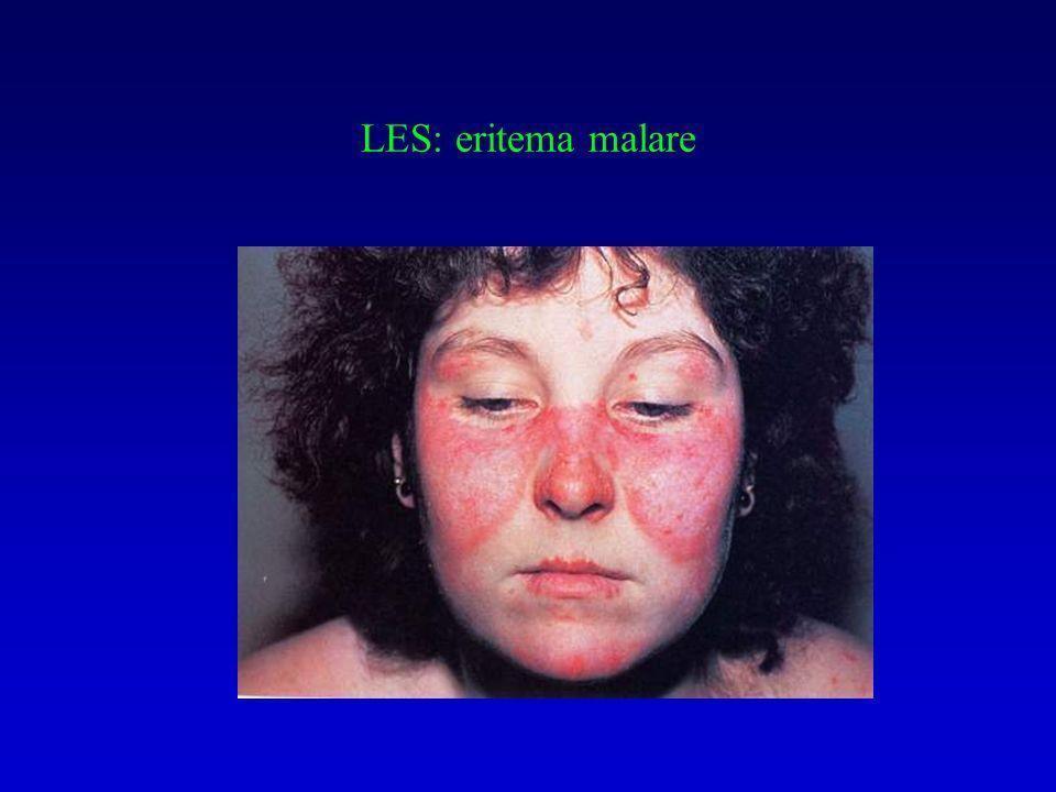 LES: eritema malare